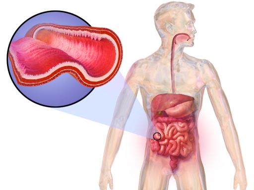 Picture of the digestive tract with a cut out of an inflamed section